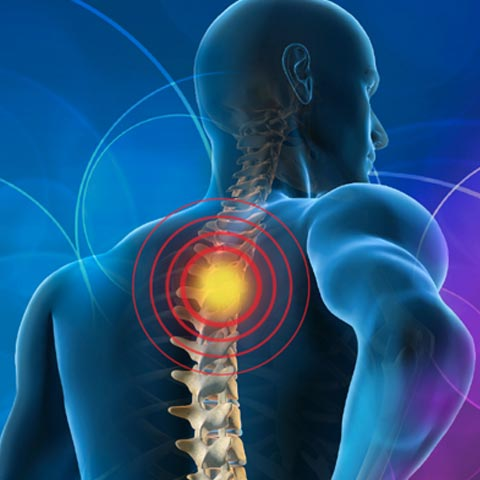 spinal steroid injections and nerve root blocks