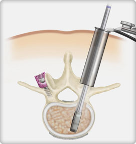 lumbar epidural steroid injection procedure code